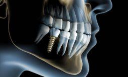 Lucruri importante pe care trebuie sa le știe orice persoana care vrea sa isi puna un implant dentar