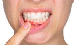 Retractia gingivala. De ce este atât de periculoasa?